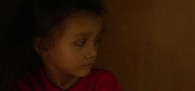 Три милиони деца годишно умираат од глад