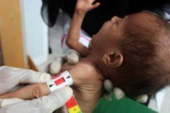 ФАО: Повеќе од 130 милиони луѓе во опасност од глад